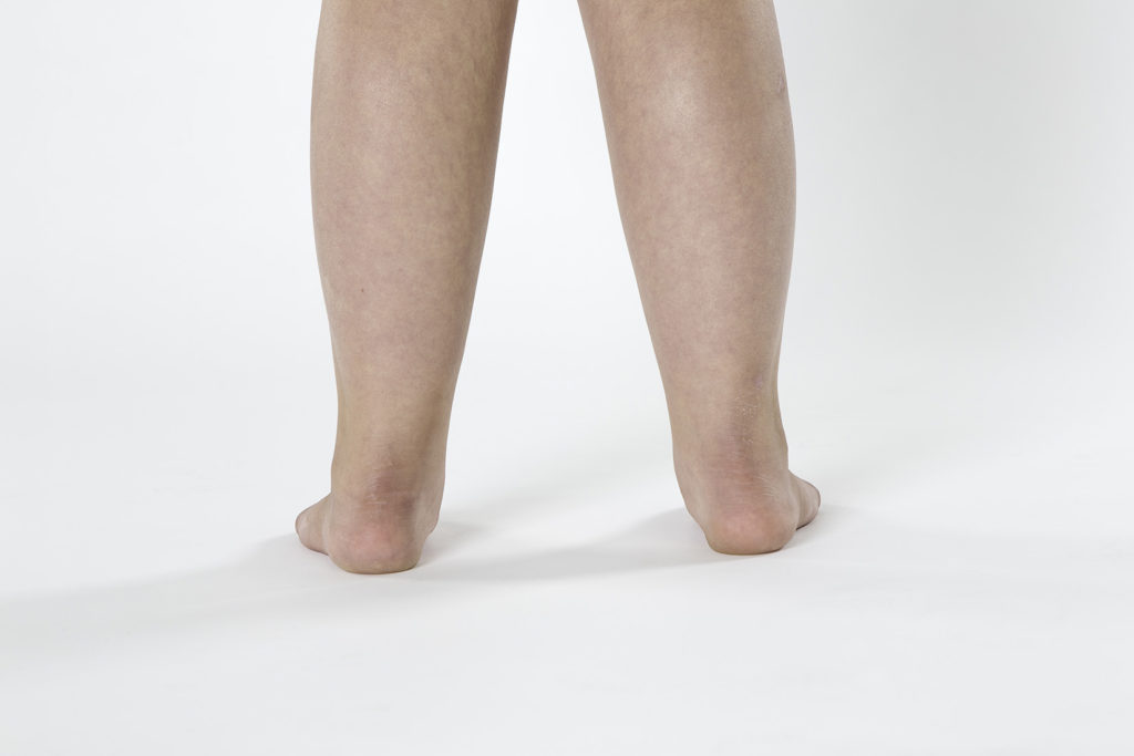 An example of flat feet