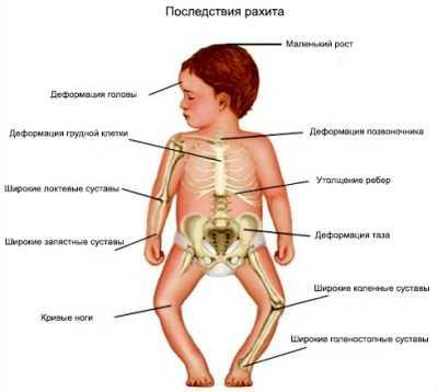 Рахит у ребенка комаровский — Детское здоровье